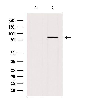 BBS10 Antibody in Western Blot (WB)