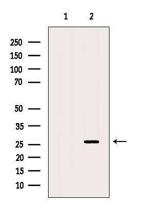 GSTM4 Antibody in Western Blot (WB)