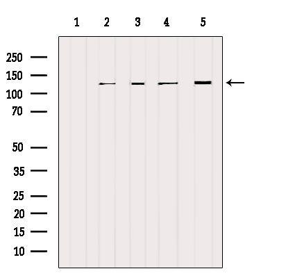 NCKAP1 Antibody in Western Blot (WB)