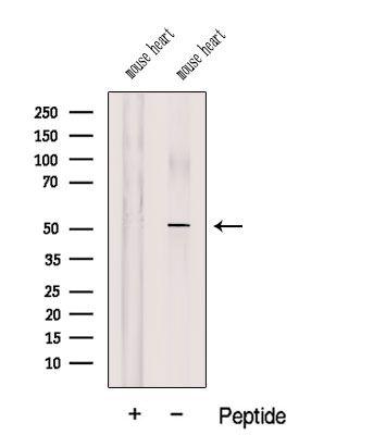 COQ6 Antibody in Western Blot (WB)