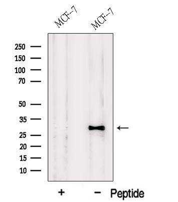 HDGFRP3 Antibody in Western Blot (WB)