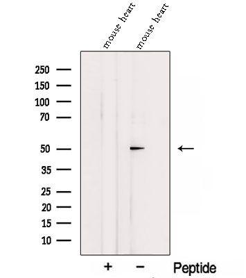 SGMS1 Antibody in Western Blot (WB)