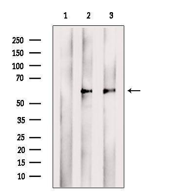 TCN2 Antibody in Western Blot (WB)