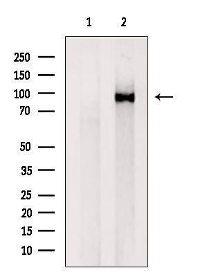 VPS35 Antibody in Western Blot (WB)