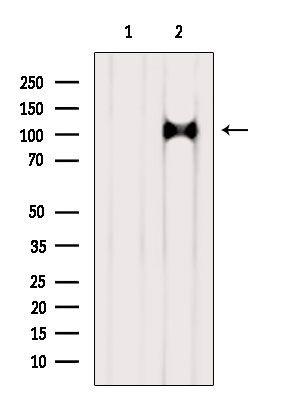 AP3D1 Antibody in Western Blot (WB)