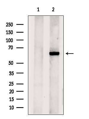 CPNE6 Antibody in Western Blot (WB)