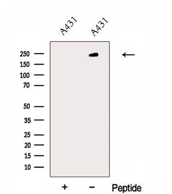 EXPH5 Antibody in Western Blot (WB)