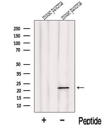 LOH12CR1 Antibody in Western Blot (WB)