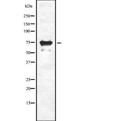 SLC34A2 Antibody in Western Blot (WB)