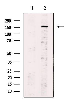 CD109 Antibody in Western Blot (WB)