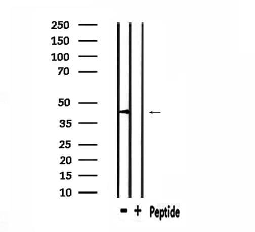 PHLDA1 Antibody in Western Blot (WB)