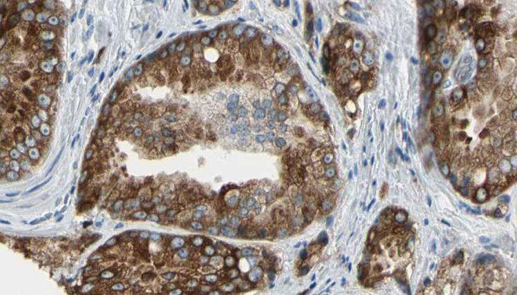 VSIG2 Antibody in Immunohistochemistry (Paraffin) (IHC (P))