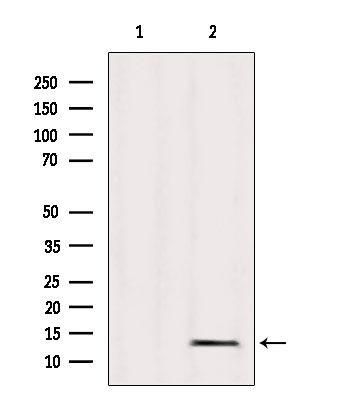 MRPL36 Antibody in Western Blot (WB)