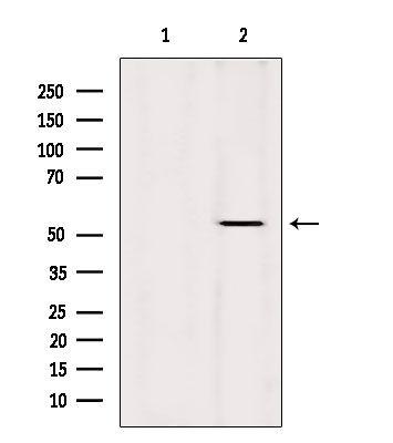 Cytokeratin 36 Antibody in Western Blot (WB)