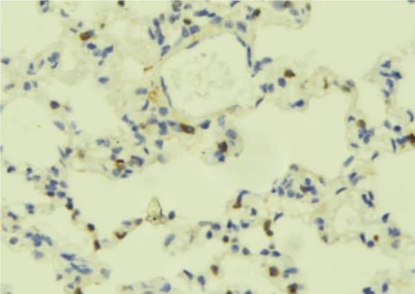 PLCE1 Antibody in Immunohistochemistry (Paraffin) (IHC (P))