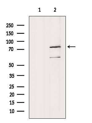 FUBP1 Antibody in Western Blot (WB)