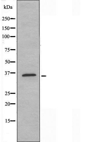 HOXA1 Antibody in Western Blot (WB)
