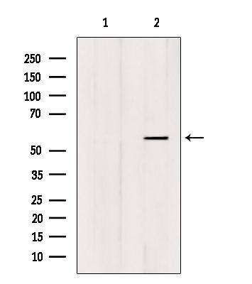 FOXC1/FOXC2 Antibody in Western Blot (WB)