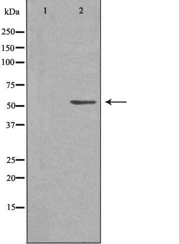 CARKL Antibody in Western Blot (WB)