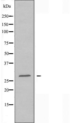 CDCA3 Antibody in Western Blot (WB)