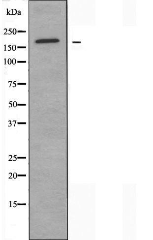 MRP3 Antibody in Western Blot (WB)