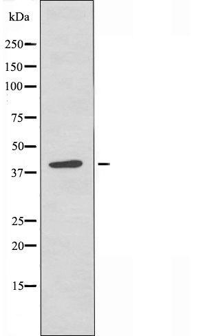 CHST8 Antibody in Western Blot (WB)