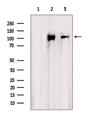 CNGB1 Antibody in Western Blot (WB)
