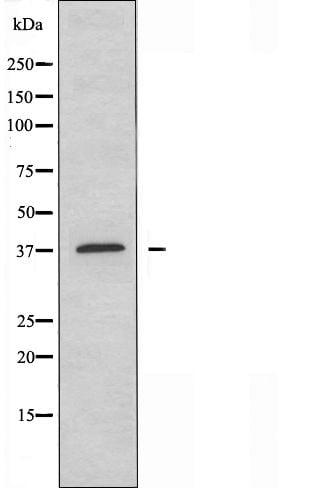HOXB2 Antibody in Western Blot (WB)