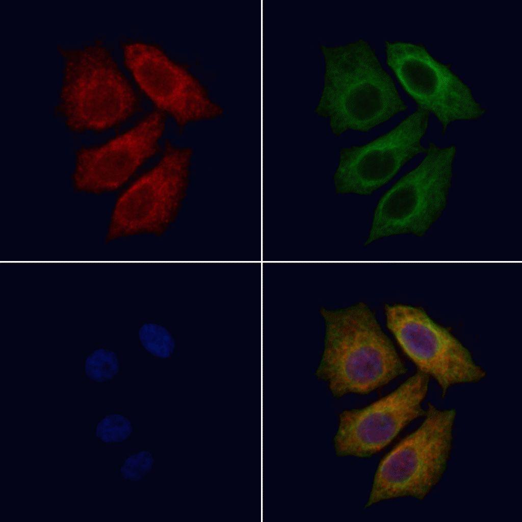 Radixin Antibody in Immunofluorescence (IF)