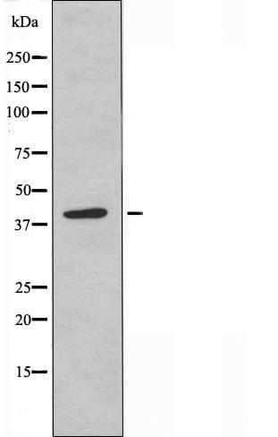 SERPINB9 Antibody in Western Blot (WB)