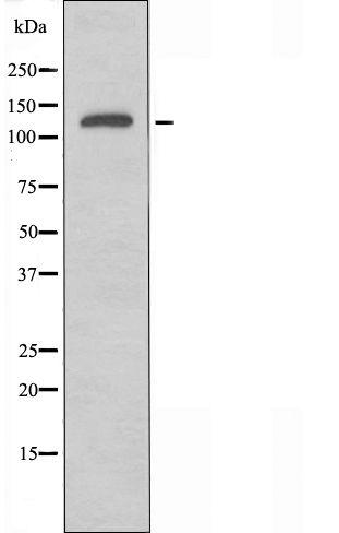 SLC4A8/SLC4A10 Antibody in Western Blot (WB)