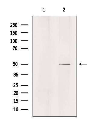 ZFYVE19 Antibody in Western Blot (WB)