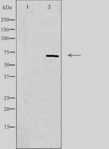 ZIP4 Antibody in Western Blot (WB)
