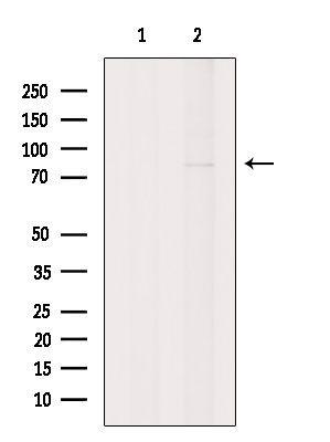 GNE Antibody in Western Blot (WB)