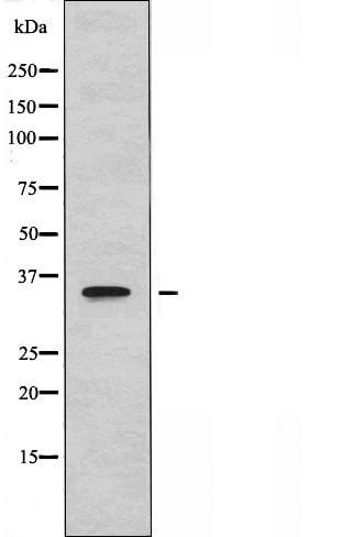 CYSLTR1 Antibody in Western Blot (WB)