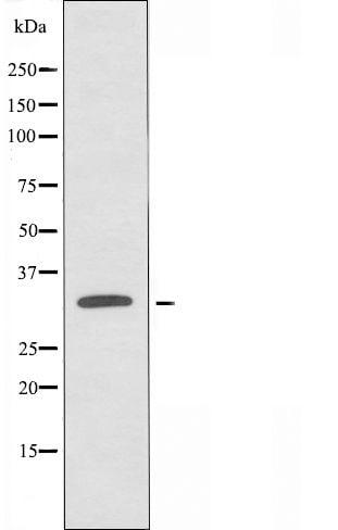 OR10AD1 Antibody in Western Blot (WB)