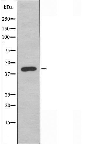OR2AJ1 Antibody in Western Blot (WB)