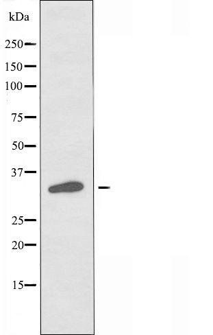 OR5M11 Antibody in Western Blot (WB)