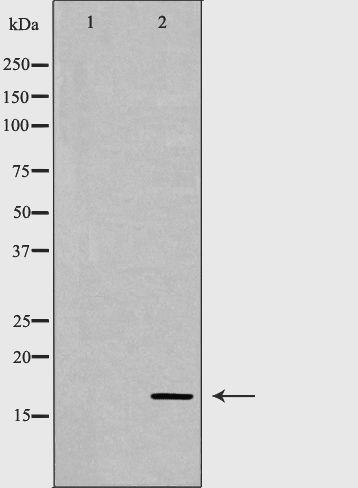 Calmodulin 1/2/3 Antibody in Western Blot (WB)