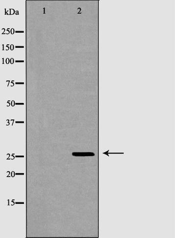 GSTM1/GSTM2 Antibody in Western Blot (WB)