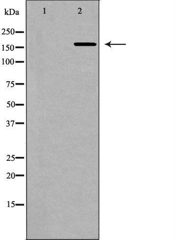 Collagen V Antibody in Western Blot (WB)