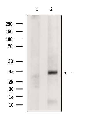 NAT1 Antibody in Western Blot (WB)