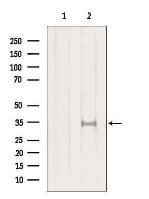 SULT1A1 Antibody in Western Blot (WB)
