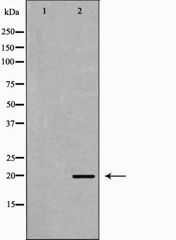 PTHLH Antibody in Western Blot (WB)