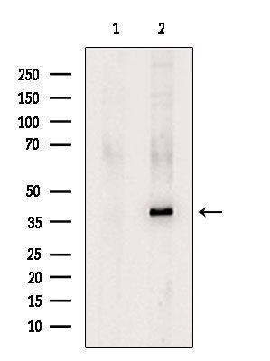 KIR2DL1 Antibody in Western Blot (WB)