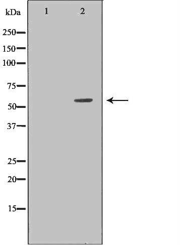 DKC1 Antibody in Western Blot (WB)