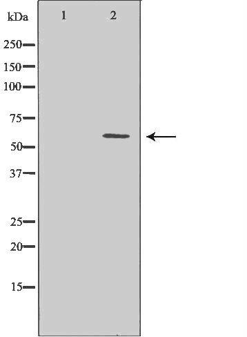 GABRB2 Antibody in Western Blot (WB)