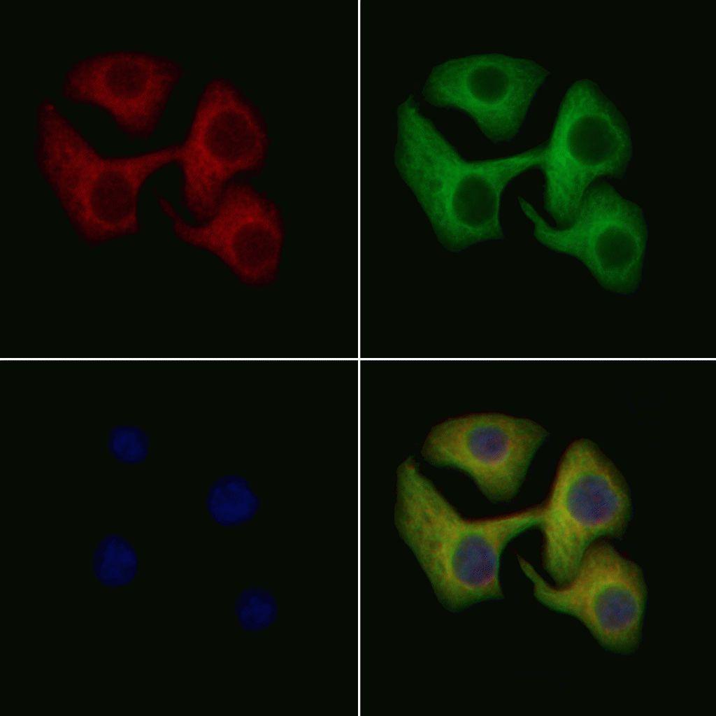 IL1R2 Antibody in Immunofluorescence (IF)