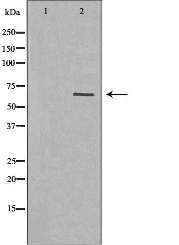 Glypican 3 Antibody in Western Blot (WB)