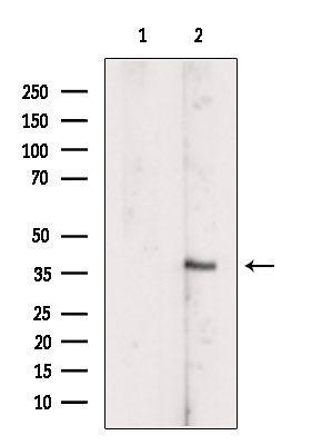 SCCPDH Antibody in Western Blot (WB)